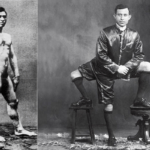 The story of Frank Lentini, the man with 3 legs